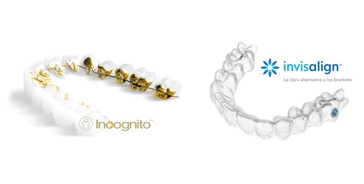 invisalign vs incognito