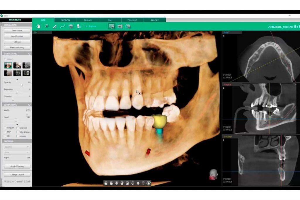 Implantología en clínica Blay+Monzó