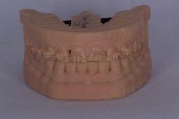 MOdelos dentales articulados