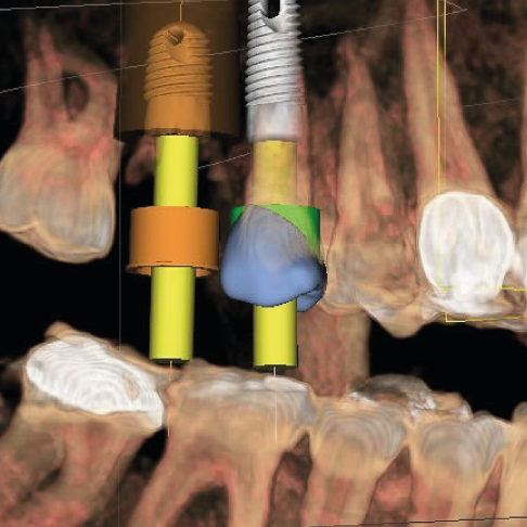implante dental clinica blay monzó