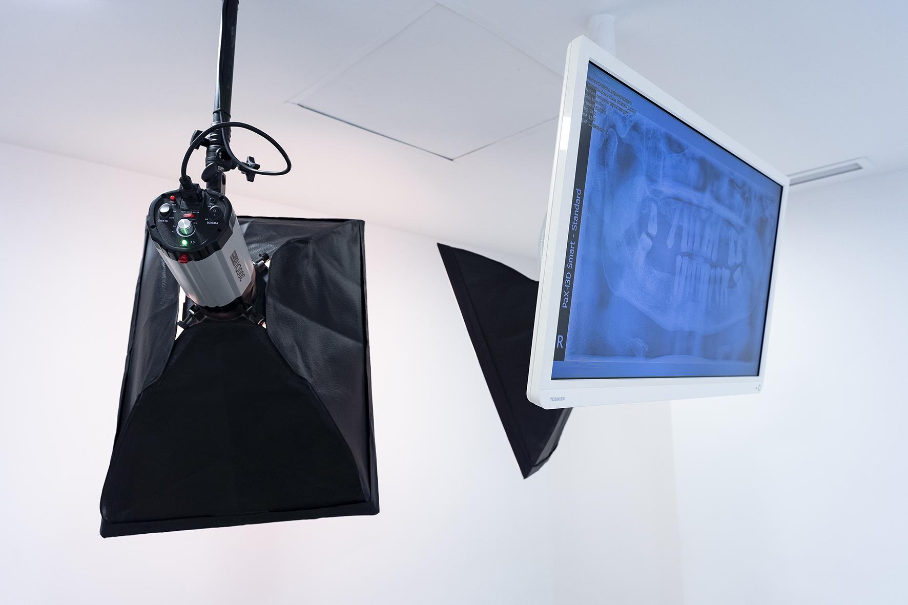 equipo fotográfico profesional en clinica dental castellon